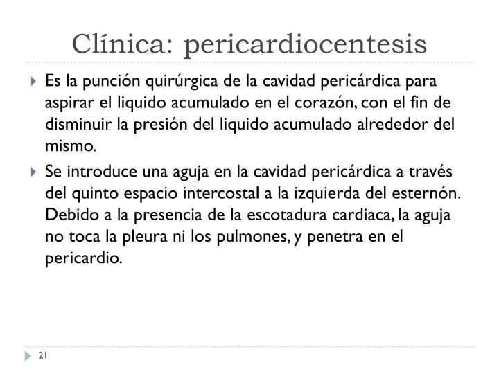 Clínica: pericardiocentesis
