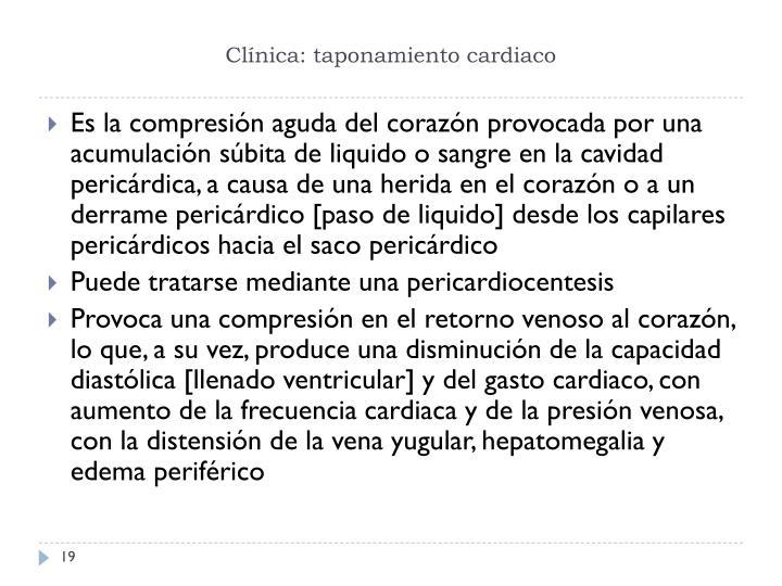Clínica: taponamiento cardiaco