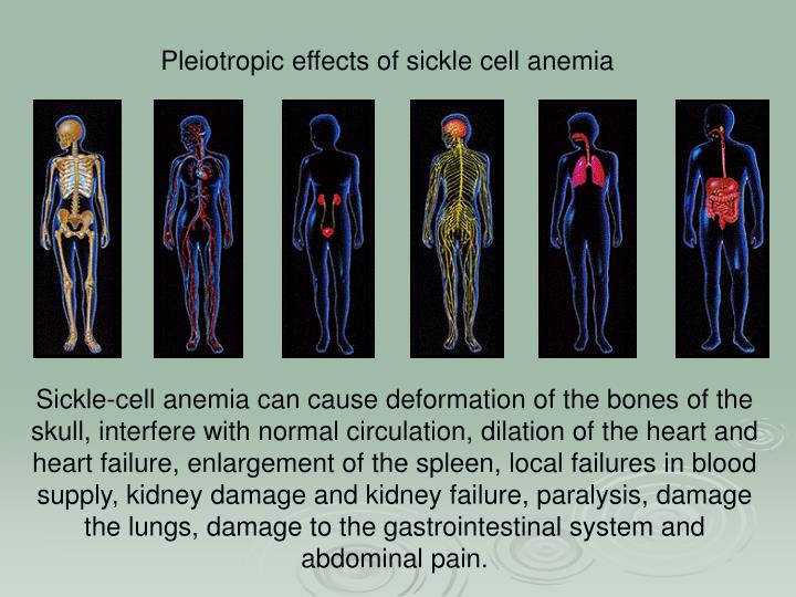 effect of sicklecell anemia in adults