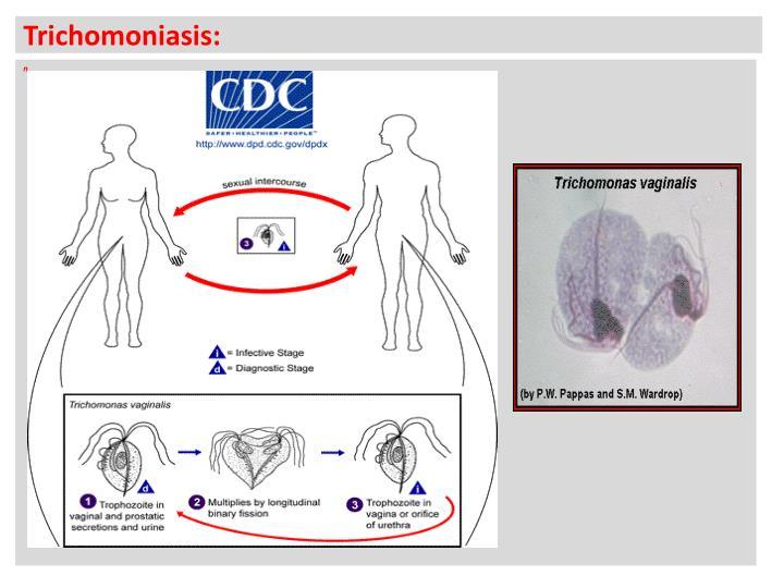 Trichomoniasis: