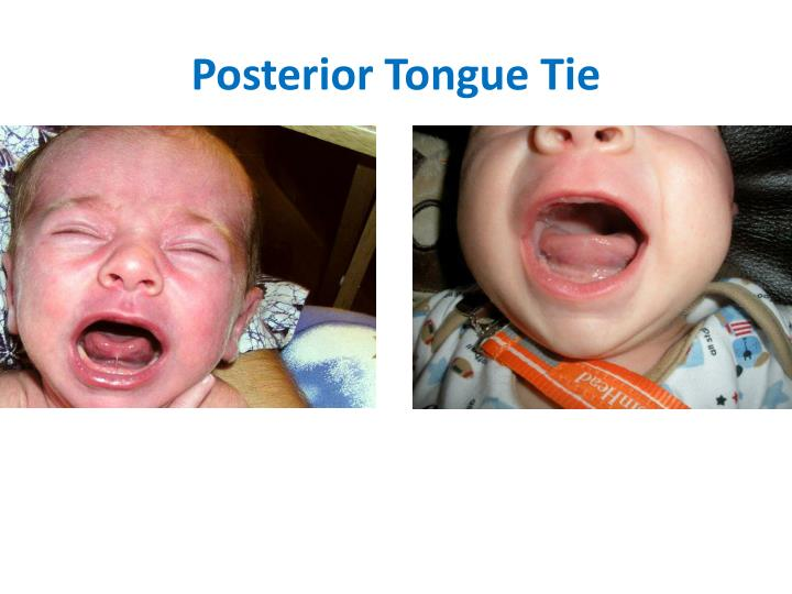 ppt rabin m s ccc slp l ibclc pediatric speech