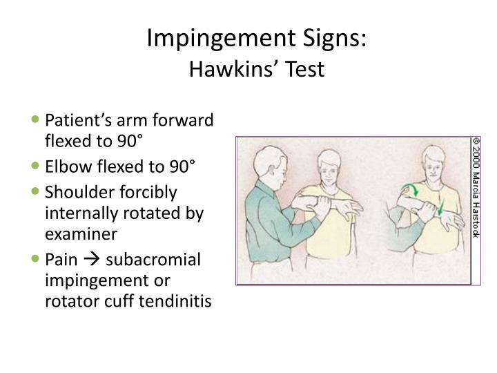 Impingement Signs: