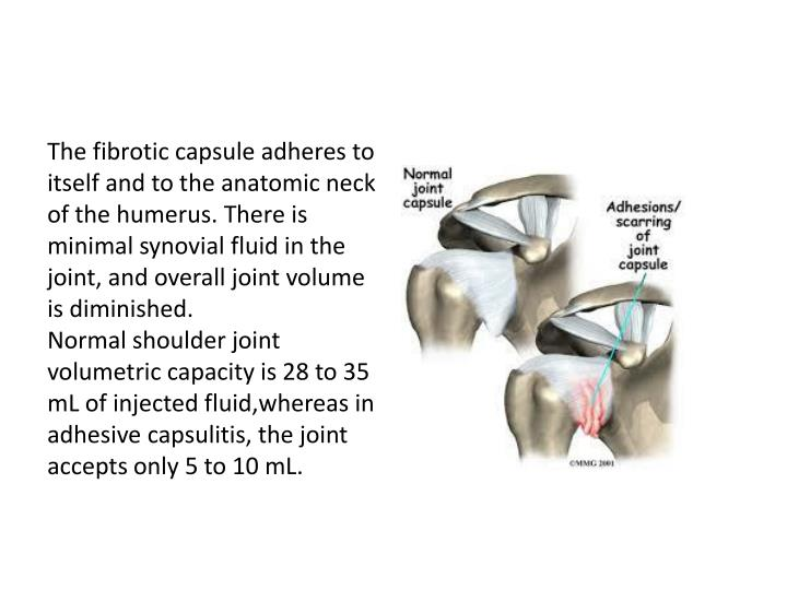 The fibrotic capsule adheres to itself and to the anatomic neck of the