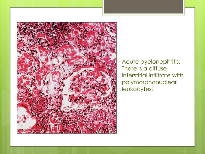 Acute pyelonephritis. There is a diffuse interstitial infiltrate with polymorphonuclear leukocytes.