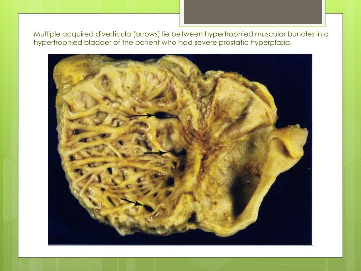 Multiple acquired diverticula (arrows) lie between hypertrophied muscular bundles in a hypertrophied bladder of the patient who had severe prostatic hyperplasia.