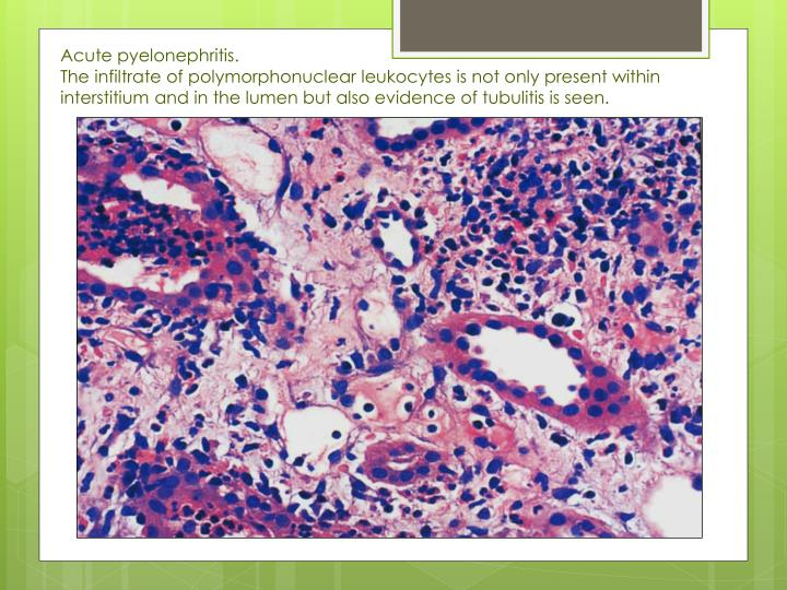 Acute pyelonephritis.