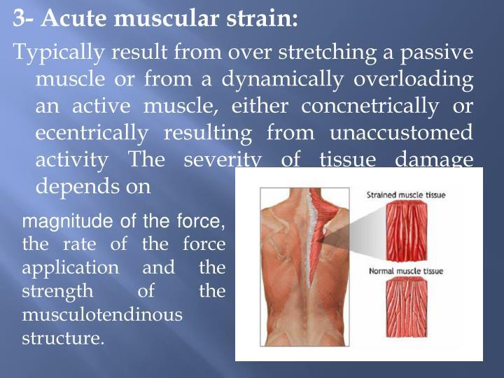 3- Acute muscular strain: