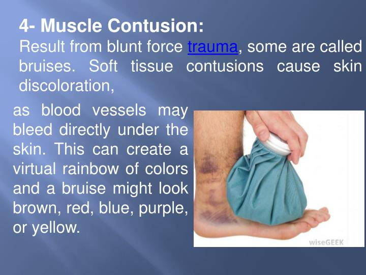 4- Muscle Contusion: