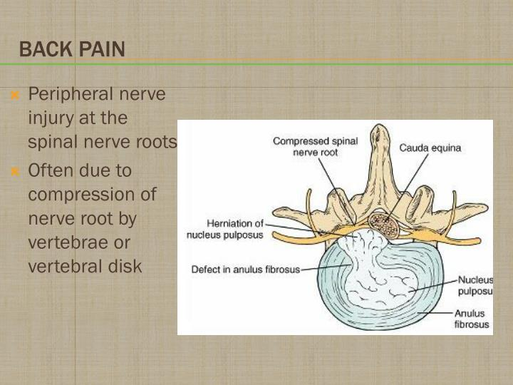 Peripheral nerve injury at the spinal nerve roots