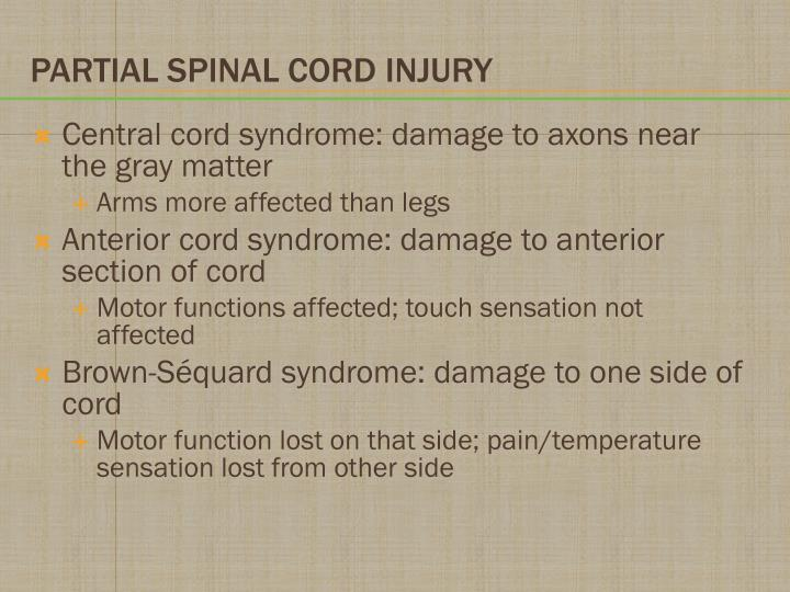 Central cord syndrome: damage to axons near the gray matter