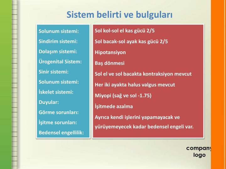 Sistem belirti ve bulguları