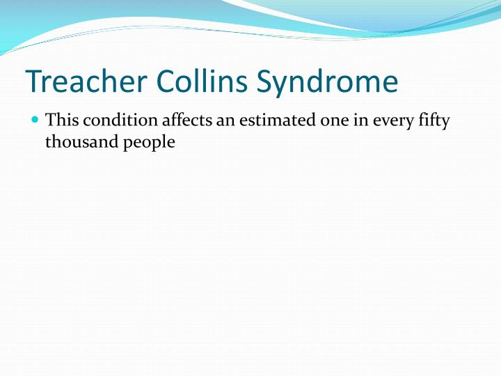 Treacher collins syndrome2