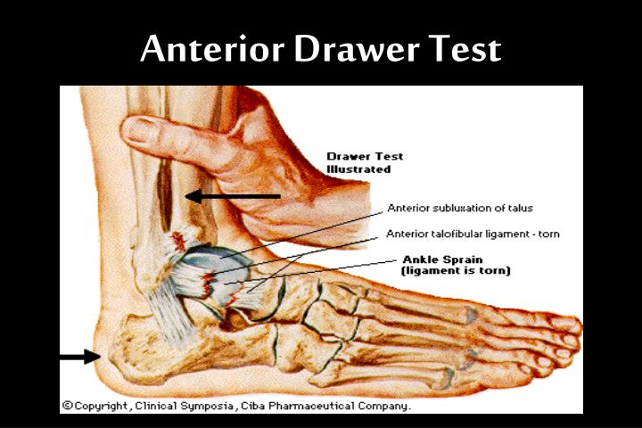 Anterior Drawer Test