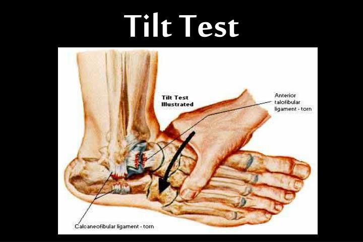 Tilt Test