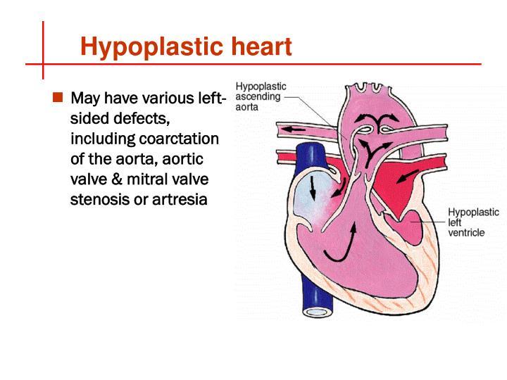 Hypoplastic heart