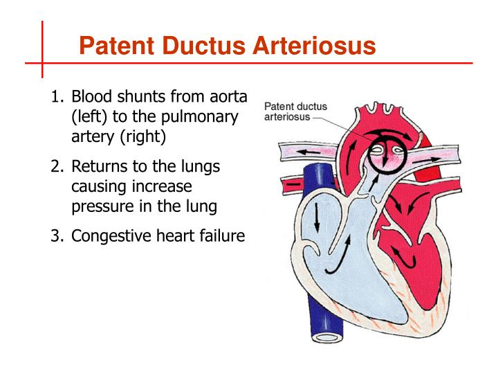 Blood shunts from aorta (left) to the pulmonary artery (right)