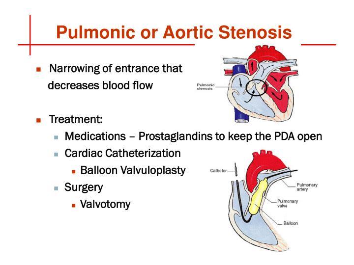 Pulmonic or Aortic Stenosis
