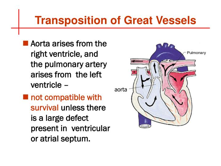 Aorta arises from the right ventricle, and the pulmonary artery arises from  the left ventricle –