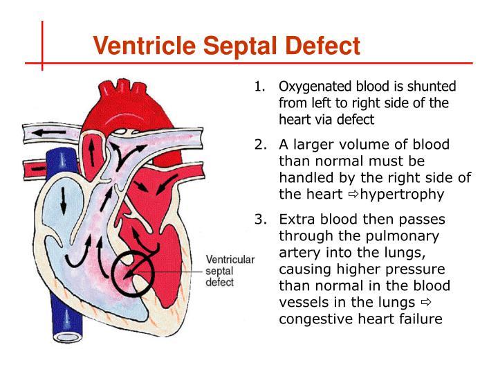 Ventricle Septal Defect