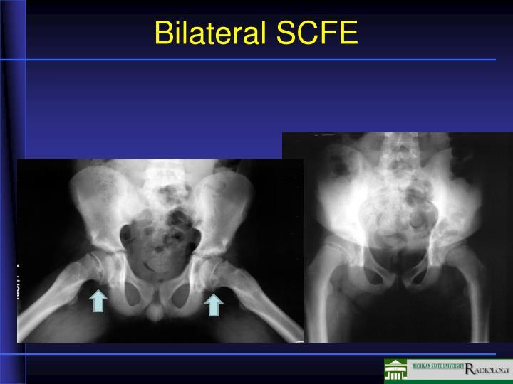 Bilateral SCFE