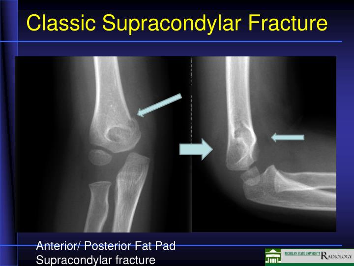Classic Supracondylar Fracture