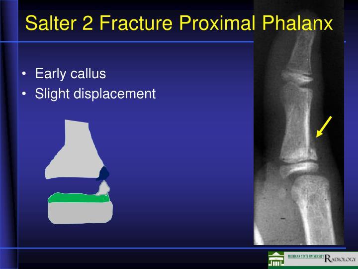 Salter 2 Fracture Proximal Phalanx