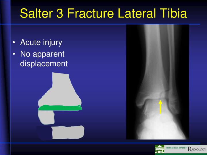 Salter 3 Fracture Lateral Tibia