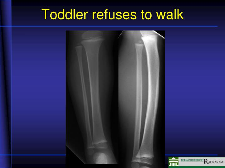 Toddler refuses to walk