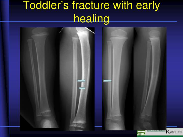 Toddler's fracture with early healing