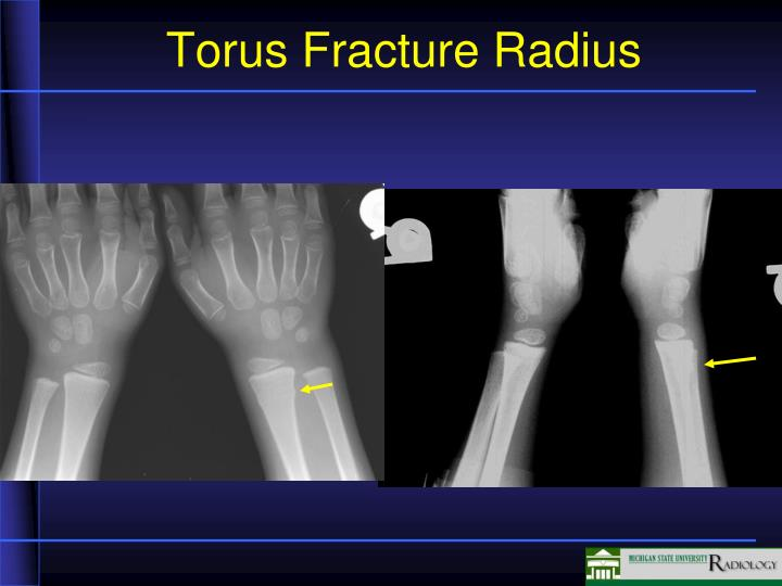 Torus Fracture Radius