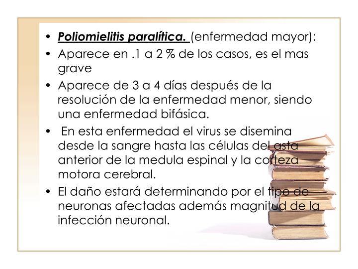 Poliomielitis paraltica.