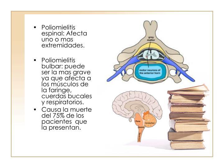 Poliomielitis espinal: Afecta uno o mas extremidades.
