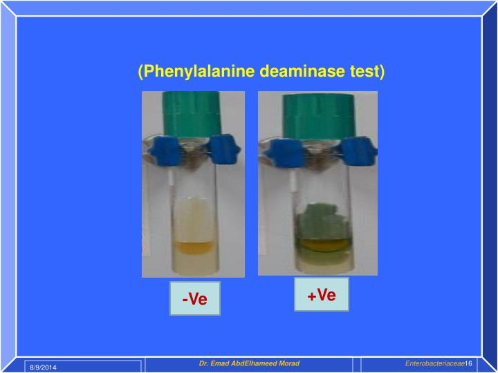 (Phenylalanine deaminase test)