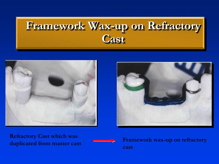 Framework Wax-up on Refractory Cast