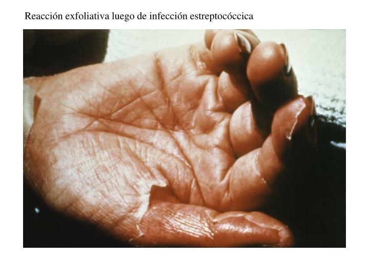 Reacción exfoliativa luego de infección estreptocóccica