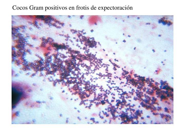 Cocos Gram positivos en frotis de expectoración