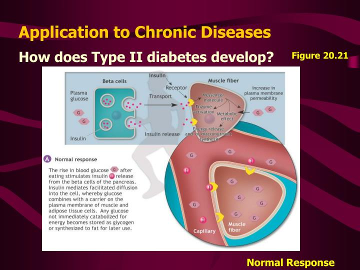 How does Type II diabetes develop?