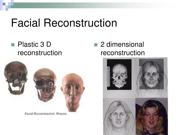 Plastic 3 D reconstruction