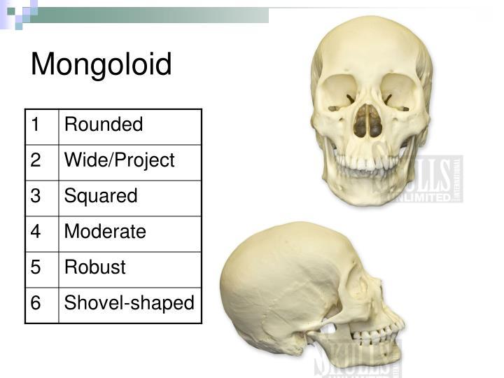 Mongoloid