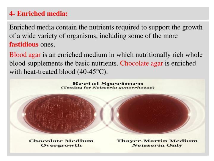 4- Enriched media: