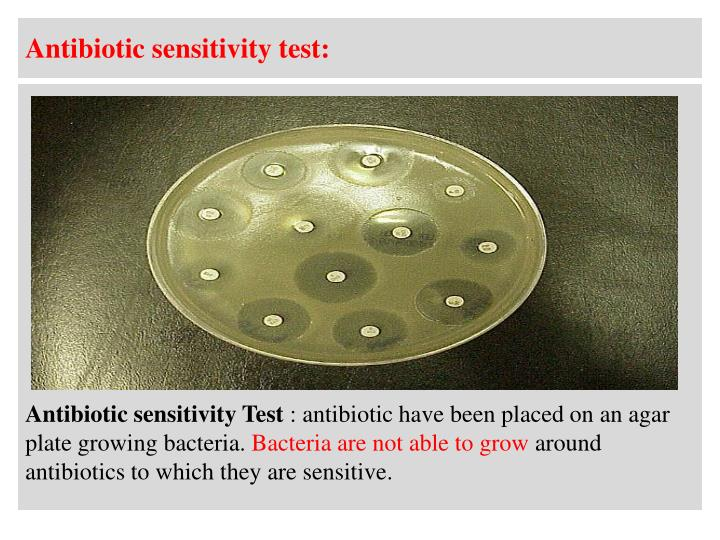 Antibiotic sensitivity test: