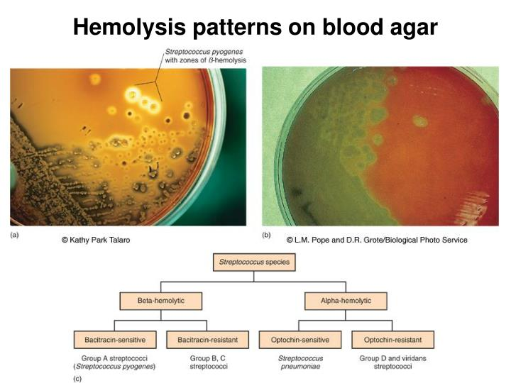 Hemolysis patterns on blood agar