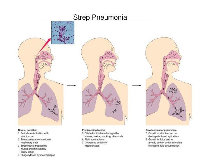 Strep Pneumonia