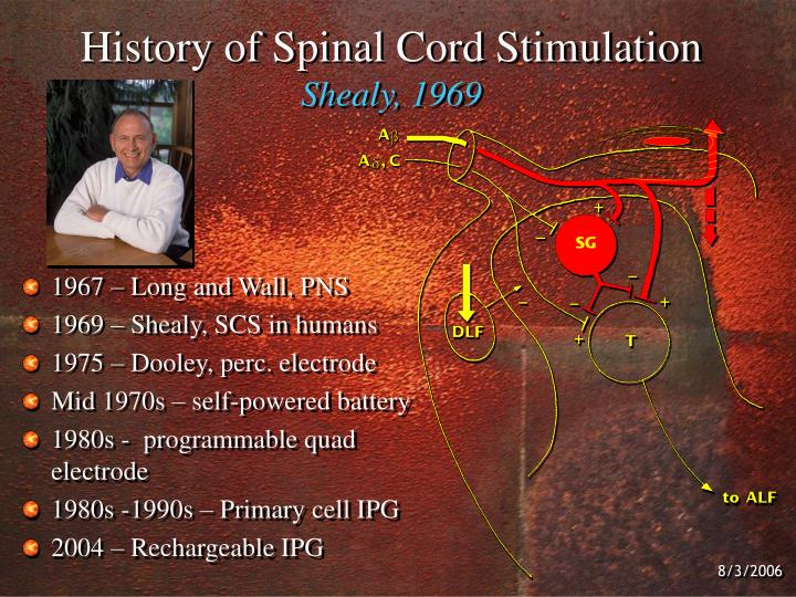 further Tn additionally Hqdefault in addition How Scs Works Large furthermore Precision Novi Ipg X Image. on ipg implant