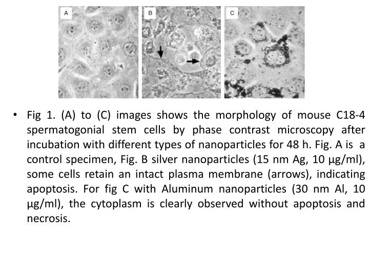 Fig 1. (A) to (C) images shows the morphology of mouse C18-4 spermatogonial stem cells by phase contrast microscopy after incubation with different types of nanoparticles for 48 h. Fig. A is  a control specimen, Fig. B silver nanoparticles (15 nm Ag, 10 µg/ml), some cells retain an intact plasma membrane (arrows), indicating apoptosis. For fig C with Aluminum nanoparticles (30 nm Al, 10 µg/ml), the cytoplasm is clearly observed without apoptosis and necrosis.