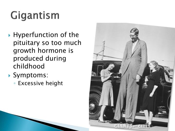 Gigantism