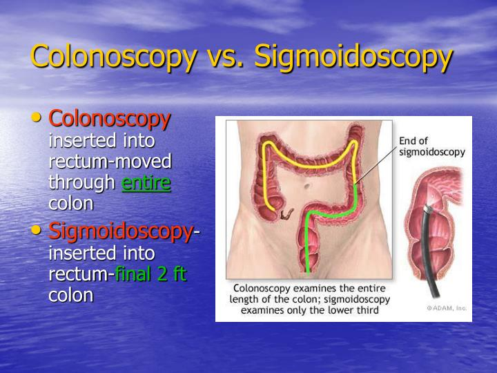 Colonoscopy vs. Sigmoidoscopy