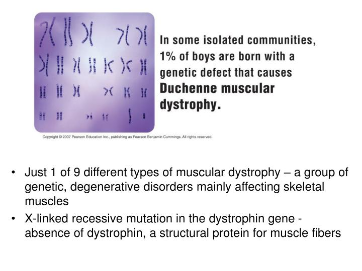 Just 1 of 9 different types of muscular dystrophy – a group of genetic, degenerative disorders mai...