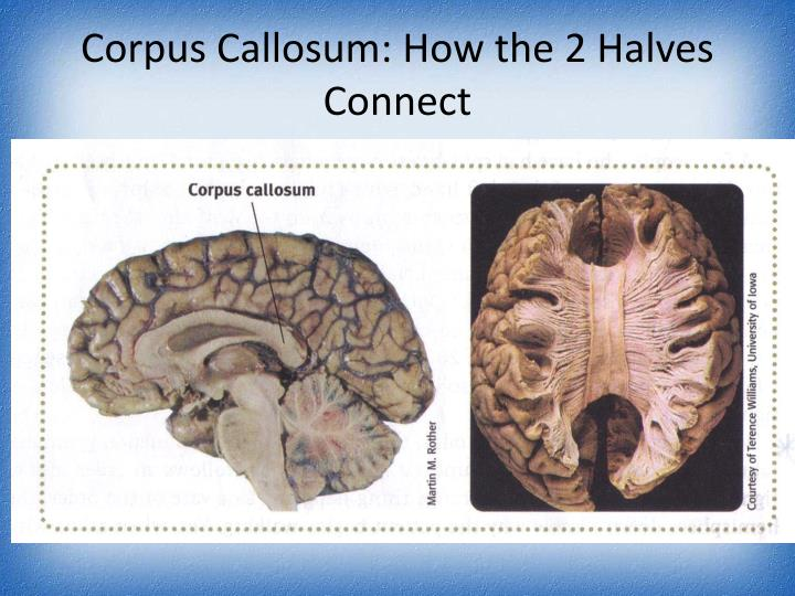 Corpus Callosum: How the 2 Halves Connect