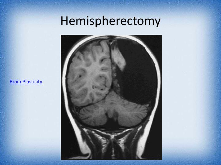Hemispherectomy